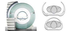 核磁共振体位卡尺/患者体位筛除卡尺
