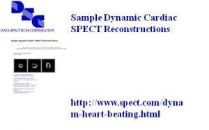 动态心脏模体GIF影像