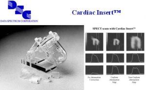 心脏插件(含实心/填充式缺陷套装)