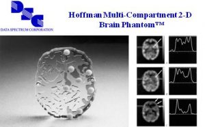 Hoffman多隔室2D脑模体