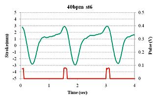compact_graph动态心脏模体-辽宁飞勒科技